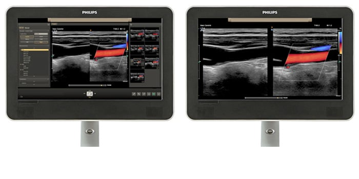 Viewing area comparison with a vascular ultrasound image on screen