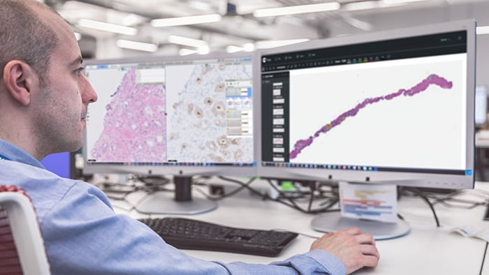Philips and Paige team up to bring Artificial Intelligence (AI) to clinical pathology diagnostics